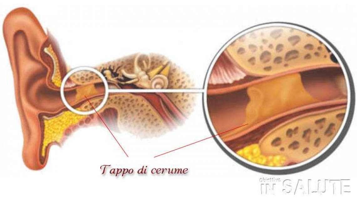 Sos Tappo Di Cerume Nelle Orecchie Come Comportarsi
