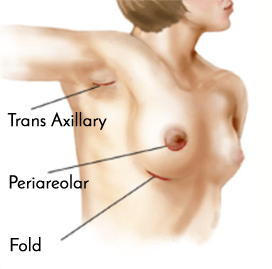 Breast Augmentation Incision Locations