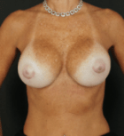 breast-aug-11-after