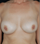 breast-aug-12-after
