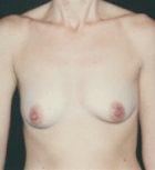 breast-aug-12-before