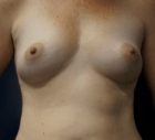 breast-aug-13-before