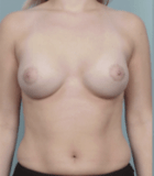 breast-aug-14-after