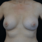 breast-aug-15-after