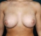 breast-aug-3-after