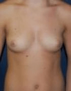 breast-aug-5-before