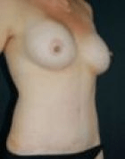 breast-aug-6-after-b-scarless