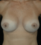 breast-aug-8-after