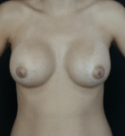 breast-aug-9-after