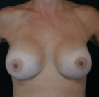 breast-lift-7-after