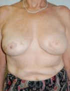 breast-reconstruction-1-after