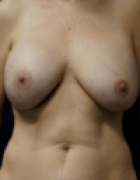 breast-reduction-2-before
