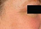 facial-rejuvenation-4-after