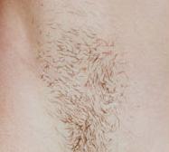 laser-hair-removal-2b