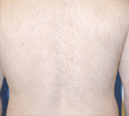 laser-hair-removal-4a