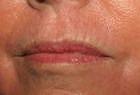 skin-resurfacing-2-after