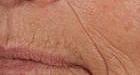 skin-resurfacing-3-before