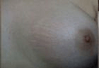 stretch-mark-2-after