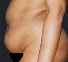 tummy-tuck-2-before