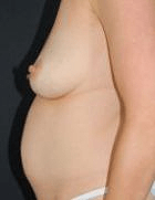 tummy-tuck-4-before