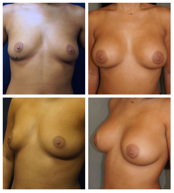 Scarless Breast Augmentation by Dr. Lewis J. Ovi at Obi Plastic Surgery