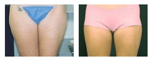 SlimLipo for Thighs at Obi Plastic Surgery