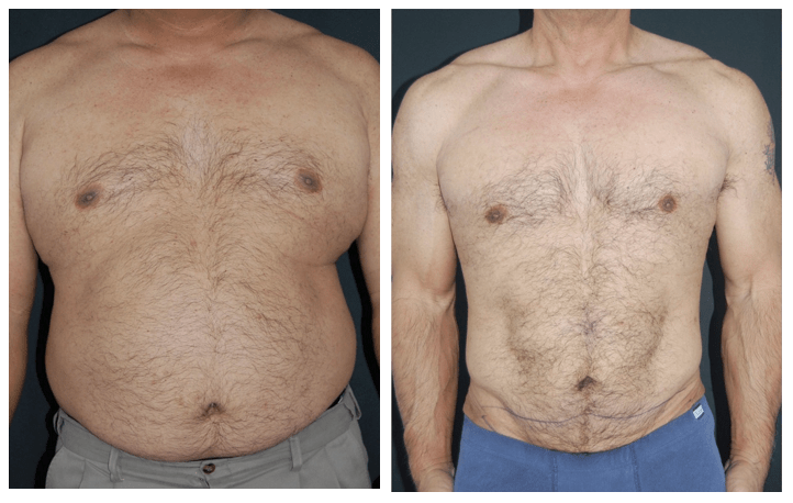 Tummy Tuck for Men at Obi Plastic Surgery in Jacksonville