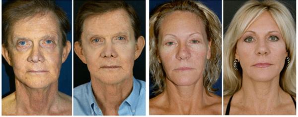 Stem Cell Operalift Facelift