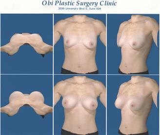 Breast Reconstruction 3D Imaging