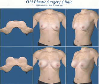 Breast Reconstruction 3D Imaging