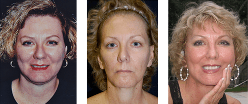 14 Year Opera Lift Face Lift Patient Study