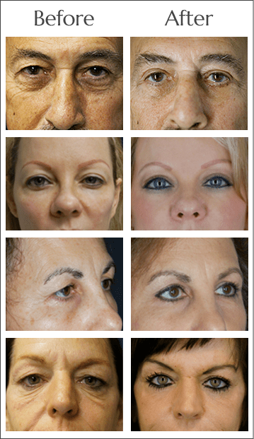 Browlift Before and After by Dr. Lewis J. Obi in Jacksonville