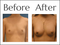 Breast augmentation with fat injection