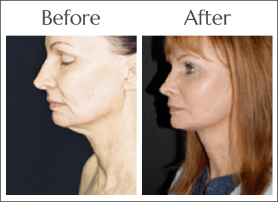 Non-Invasive Neck Lift in Jacksonville
