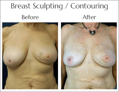 Scarless Laser Breast Sculpting in Jacksonville