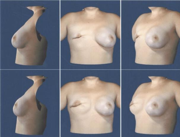 Breast Reconstruction at Obi Plastic Surgery in Jacksonville, FL