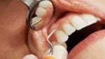 Ces 6 aliments très dangereux pour la santé de vos dents, à éviter impérativement
