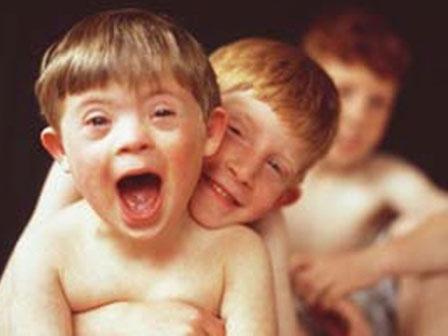 Nova droga remove dificuldade aprendizagem de crianças com Síndrome de Down (Foto: pinkada.spaceblog.com.br/2/)