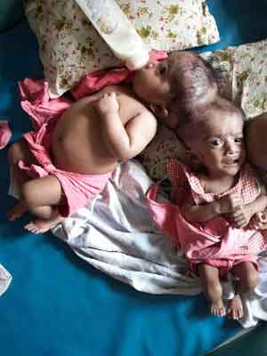 Cirurgiões tentam separar as gêmeas  Krishna and Trishna, 3, de Bangladesh.  Fonte: AP (http://www.dailytelegraph.com.au/news/national/surgeons-still-operate-on-conjoined-twins/story-e6freuzr-1225798428846)