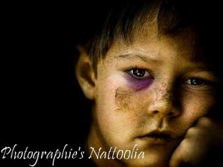 Como reconhecer maltrato infantil observando a pele da criança (Foto: http://www.flickr.com/photos/stupiddirtyd0ll/4020777486/)