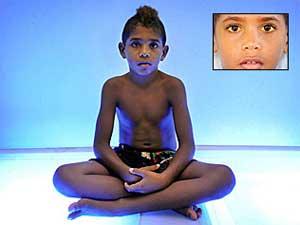 Criança fica 8 horas por dia tomando banho de luz azul para não morrer(Foto: Brian Cassey)