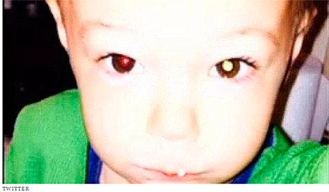Câncer no olho em garoto - foto.