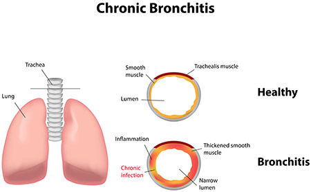 Image result for Chronic Bronchitis