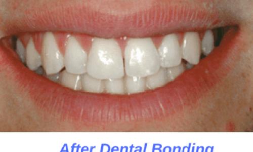 After-Dental-Bonding