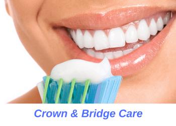 crowns-bridges-caring