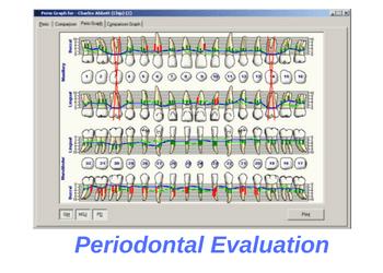 periodontal-gum-evaluation