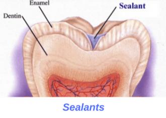 dental-sealants-san-clemente
