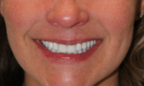 after-all-on-four-teeth