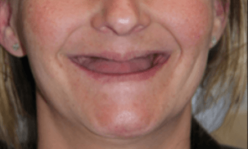 before-all-on-four-teeth