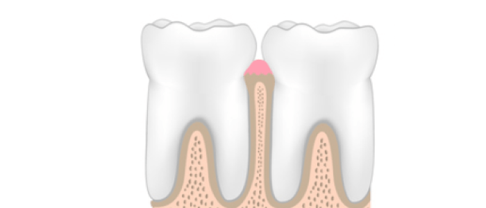 dental-cleaning-simple-cleaning